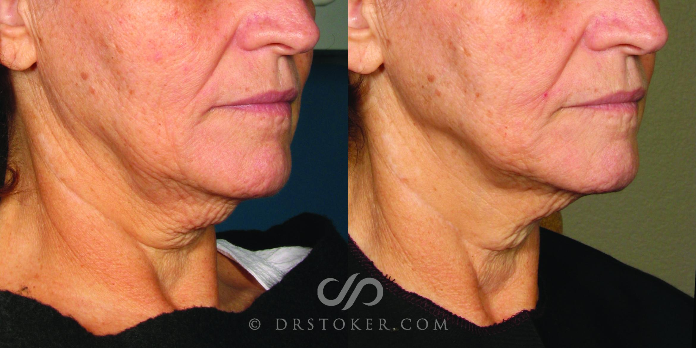 Ultherapy Case 1633 Before & After View #1 | Los Angeles, CA | Dr. David Stoker