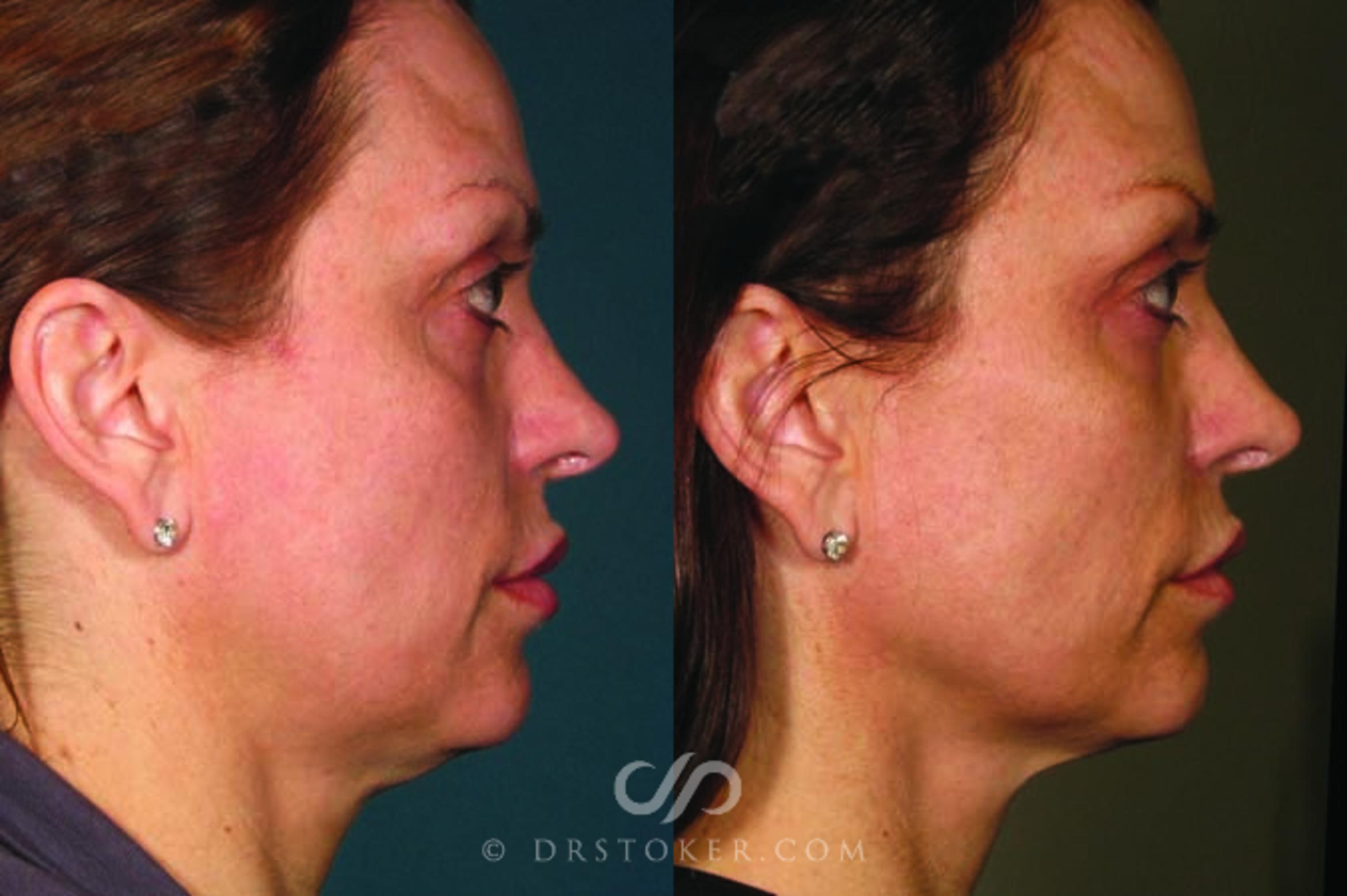 Ultherapy Case 1634 Before & After View #1 | Marina del Rey, CA | Dr. David Stoker